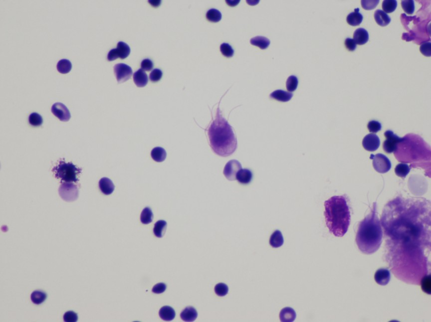 Giardia-Intestinalis