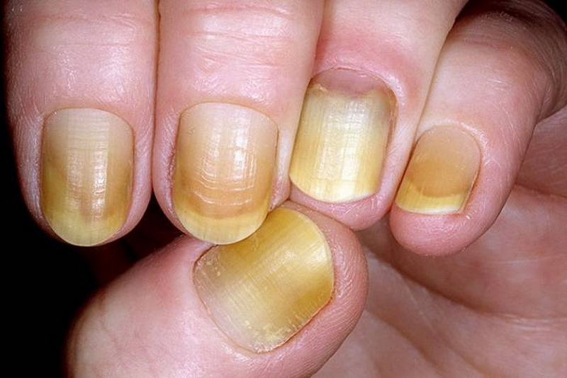 Changes In Your Fingernails That Could Signal Other